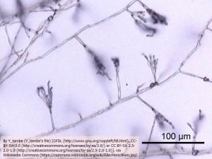 ペニシリンが単離されたアオカビ(顕微鏡写真、x200)